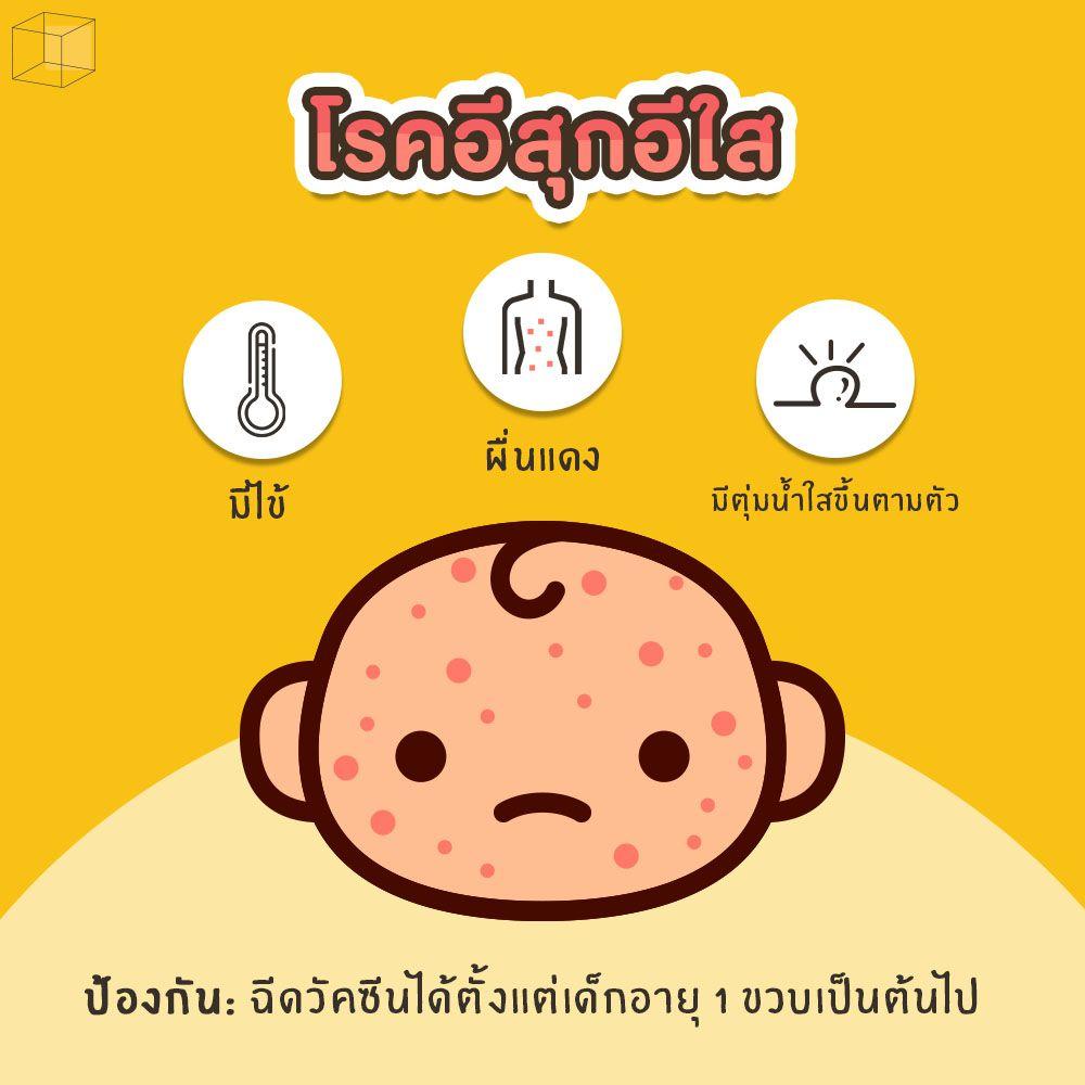 โรคอีสุกอีใส โรคหน้าฝนในเด็ก